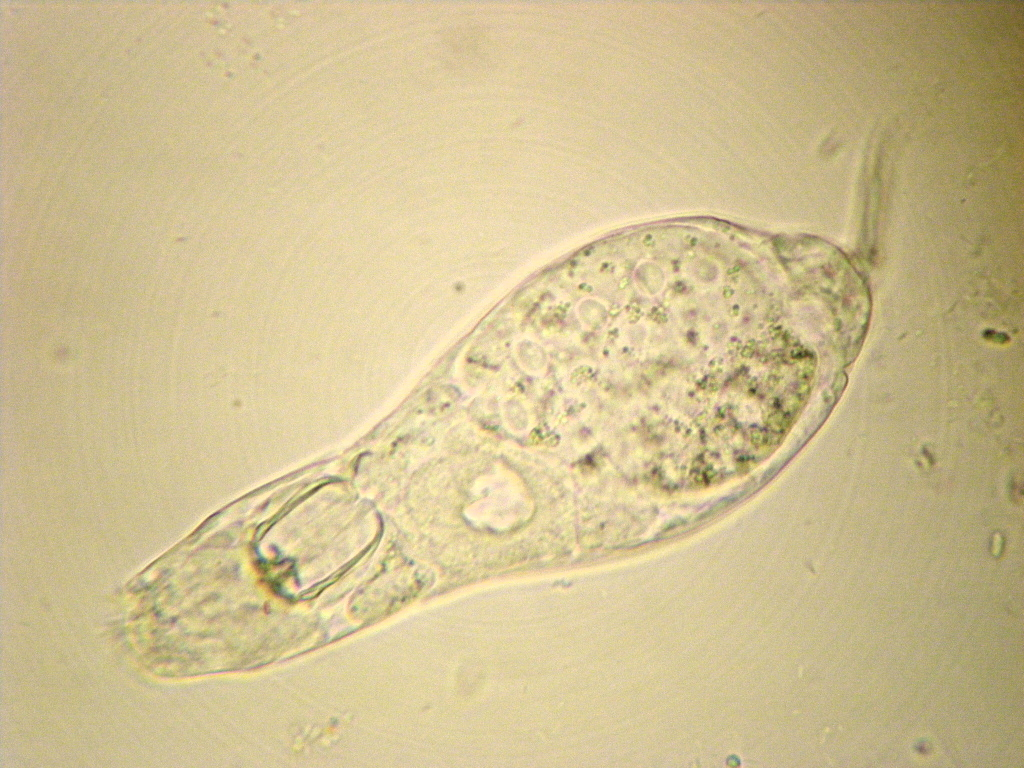 Lives in a Patch of Black Brush Algea | Microscope Talk