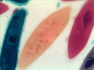 Paramecium taken by AxioVision with Best Fit at Normal Light Condition