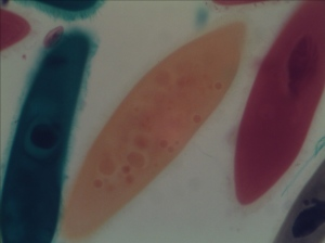 Paramecium taken by AxioVision at Normal Light Condition