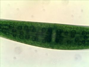 Diatom (Navicula sp.)