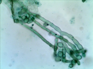 Conidia of Monilinia fructicola