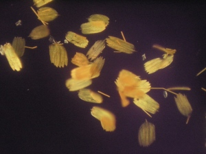 The Scales of Amermican Lady Butterfly under Polarized Light Microscope